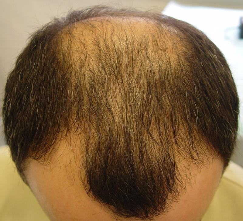 Волосы из стволовых клеток