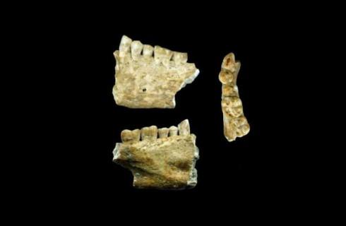 Стоматология эпохи неолита