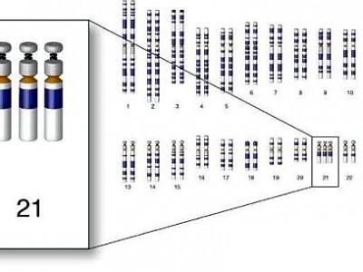 Три копии 21-й хромосомы