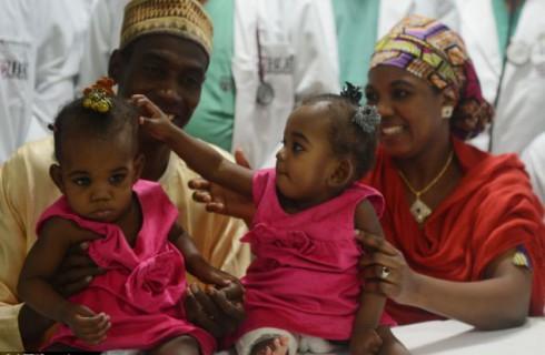 Сиамских близнецов успешно разделили после 18-часовой операции