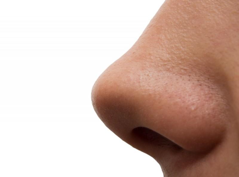 У юноши в Китае появился второй нос