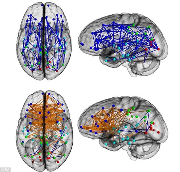 Мужской и женский мозг действительно отличается!!!