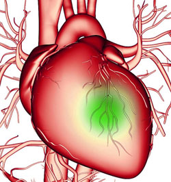 Катетеризация сердца