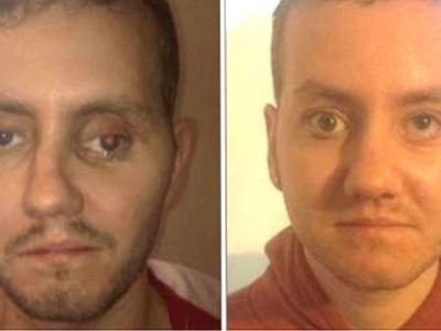 3D импланты: Стивен Пауэр до (слева) и после (справа) операции
