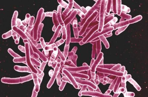 Туберкулез определят по дыханию