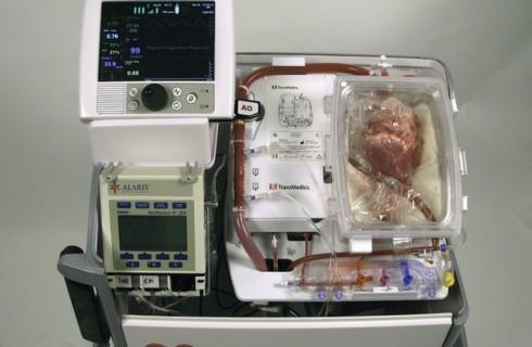 Хирурги пересаживают мертвые органы