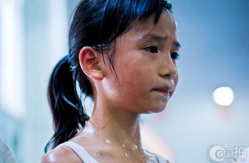 Исследователи изучают детей, которые не могут потеть