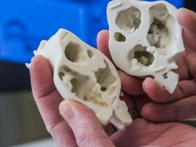3D печать сердца