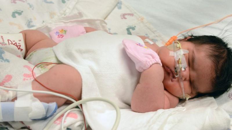 Удивительный ребенок родился в Колорадо