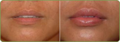 Теосиаль Kiss – быстрое и эффективное увеличение объема губ