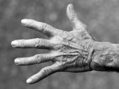 Крем на основе ДНК  избавит от морщин