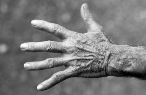 Морщины победит собственное ДНК человека