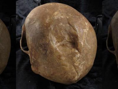 Переломы черепа XIV-XVII века
