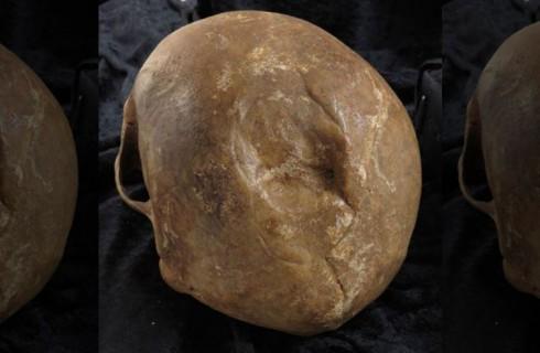 Средневековым черепам есть о чем рассказать