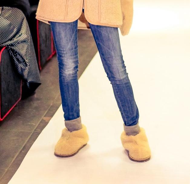 Замена коленного сустава позволяет вернуть утраченную подвижность