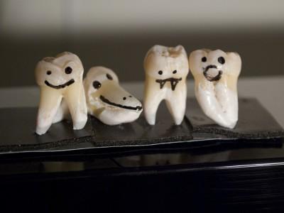 Стволовые клетки из зуба мудрости используются в офтальмологии