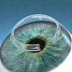 Кольца, которые могут спасти зрение