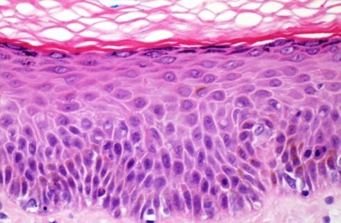 Человеческая кожа поможет побороть аппетит
