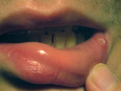 Cтоматит