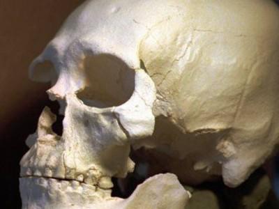 Древние люди лечили зубы
