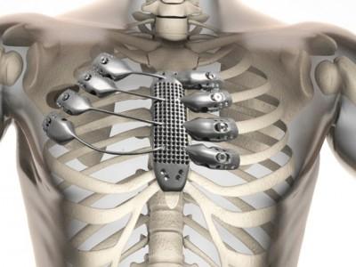 Титановая грудная клетка