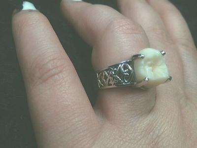 Кольцо с зубом мудрости