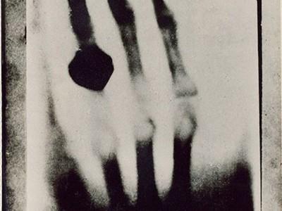 Лучи Рентгена. Снимок руки жены ученого — Берты Рентген, сделанный 22 декабря 1895 года