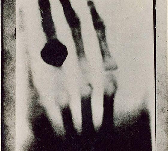 Загадочные лучи Рентгена