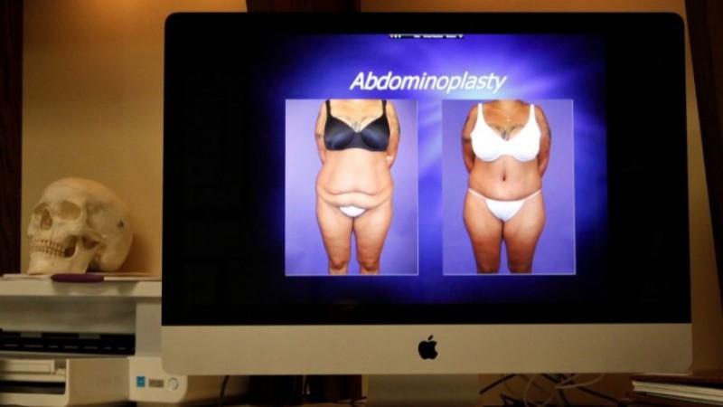 К чему приводит борьба с ожирением