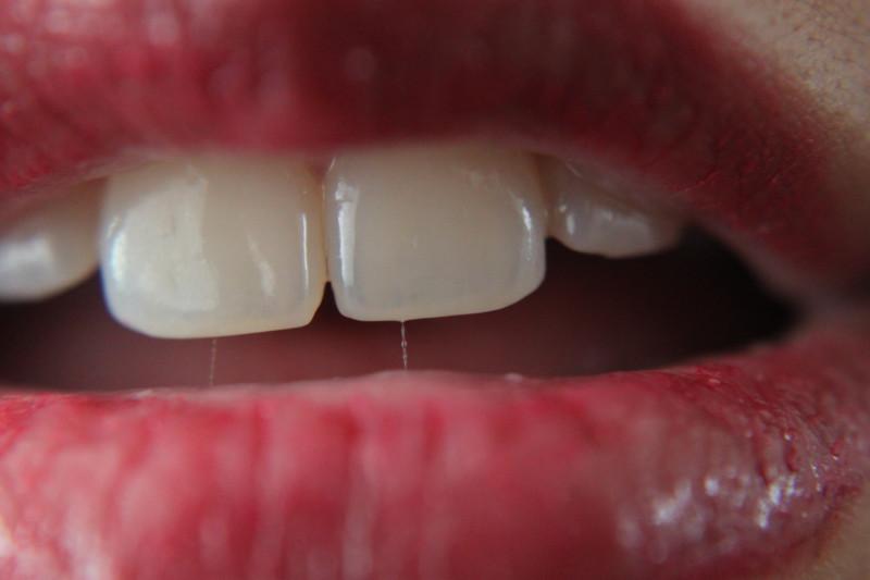Новая пломба спасет зубы