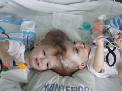 Разделили сиамских близнецов. Джейсон и Аниас Макдональд