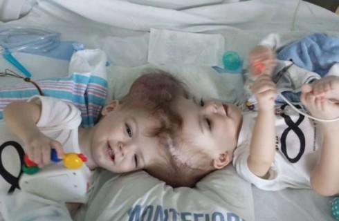 Хирурги США успешно разделили сиамских близнецов