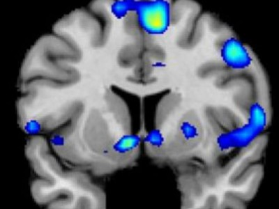 Религия влияет на мозг. Активность областей мозга во время духовного подъема