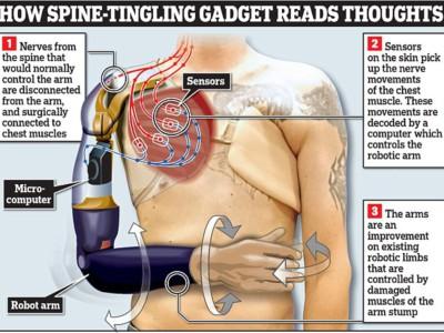 Бионические руки. Схема работы нового бионического протеза