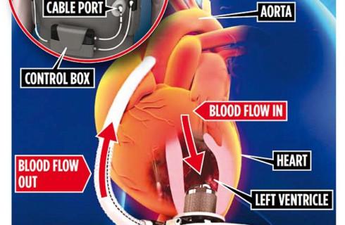 Бионическое сердце послужит лучше имплантата