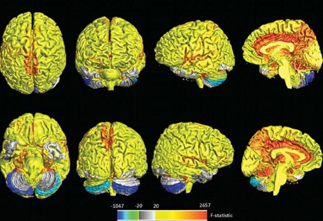 Мозг женщин оказался активнее по сравнению с мужчинами