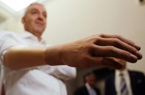Итальянские изобретатели представили уникальный протез