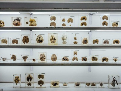 Музей мозга