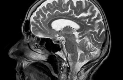Ученые поняли, как можно справиться с болезнью Альцгеймера