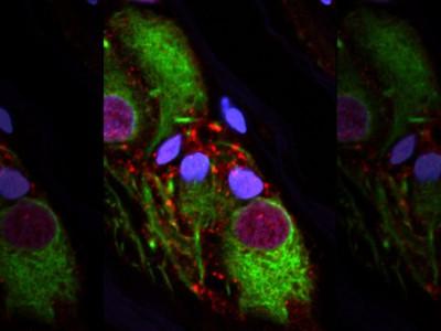 Аномальный белок в аппендиксе