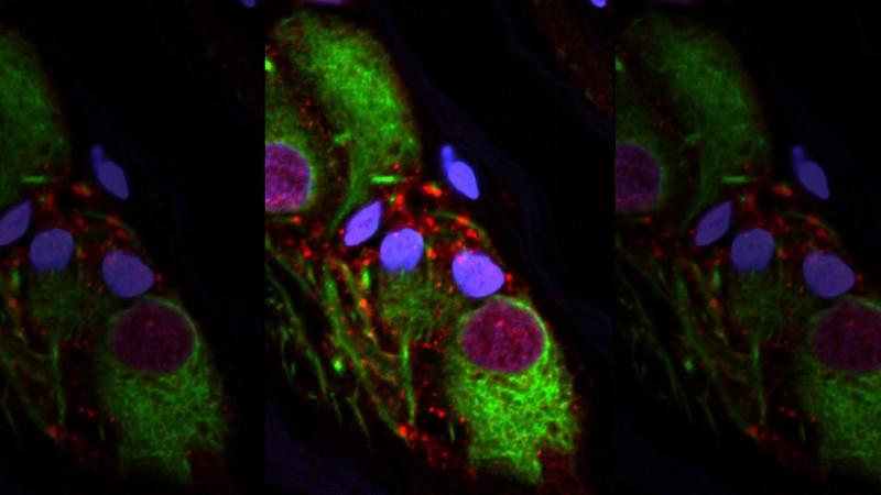Паркинсон начинается в кишечнике