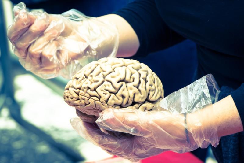 Способен ли большой мозг делать человека умнее?
